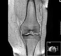 Mediale Gonarthrose eines arthrotischen Kniegelenkes.